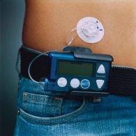 El uso de bombas de insulina disminuye la mortalidad